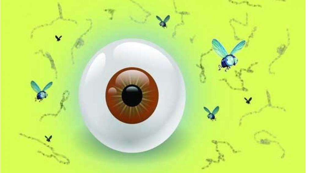 درمان خانگی مگس پران چشم